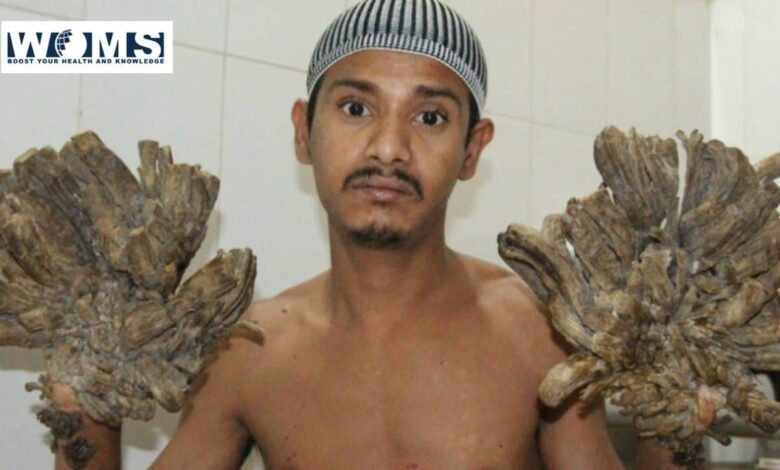 Bangladesh's tree man