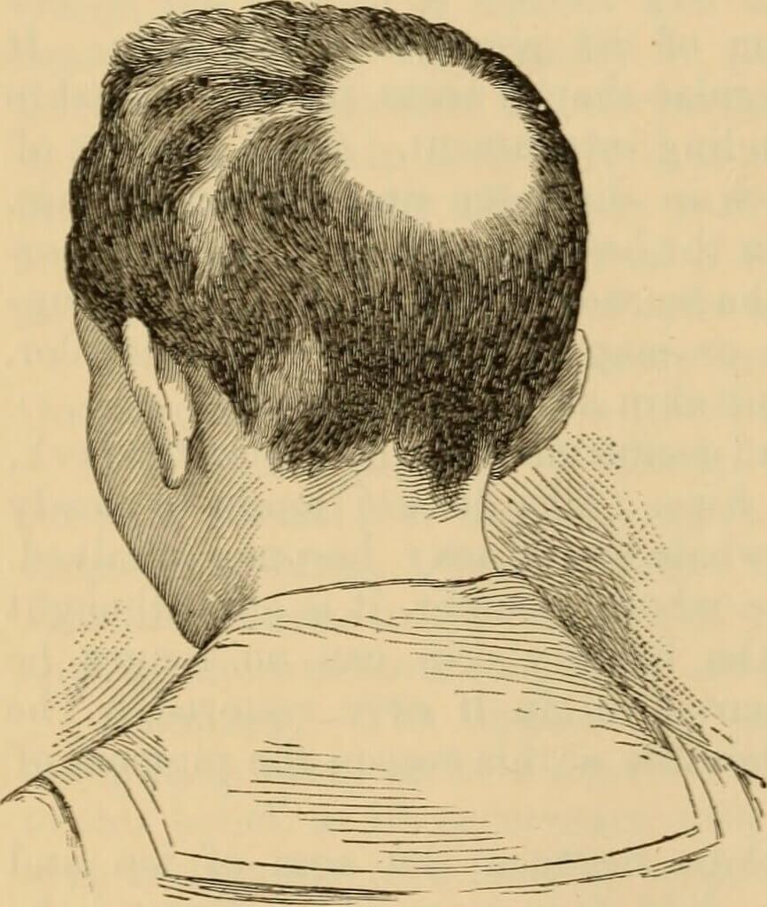 Photo of Alopecia Areata symptoms [Causes & Treatment]