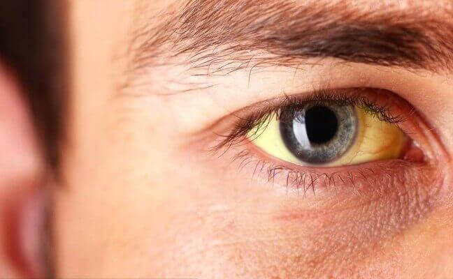Photo of Signs and Symptoms of Jaundice