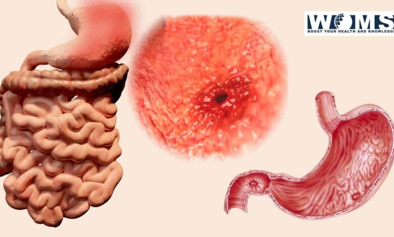 Signs of stomach ulcer
