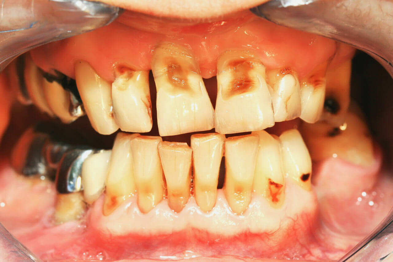 Photo of All you need to know about tooth decay in kids