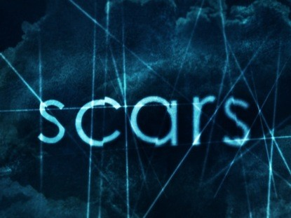 Photo of Scars