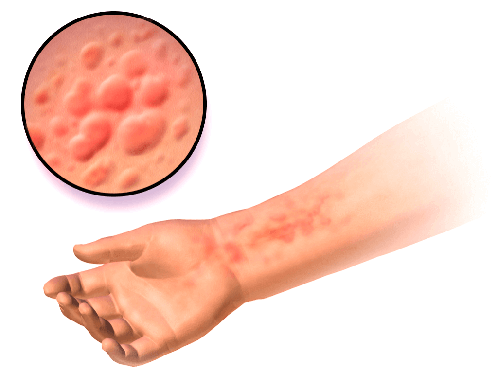 Photo of Causes of Hives (Urticaria)