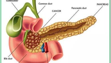 Photo of Adenocarcinoma of the pancreas