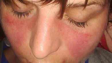 Photo of Systemic lupus erythematosus