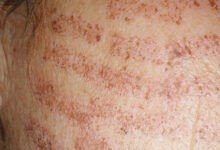Photo of Laser hair removal burns
