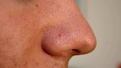 Photo of How to get rid of blackheads on nose