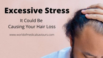 Photo of Excessive Stress: It Could Be Causing Your Hair Loss