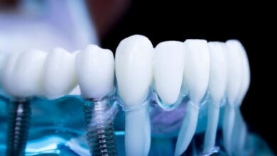 Photo of All You Need To Know About Dental Implants