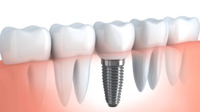 Photo of Contemplating on Dental Implants? Here Are Key Things You Should Know