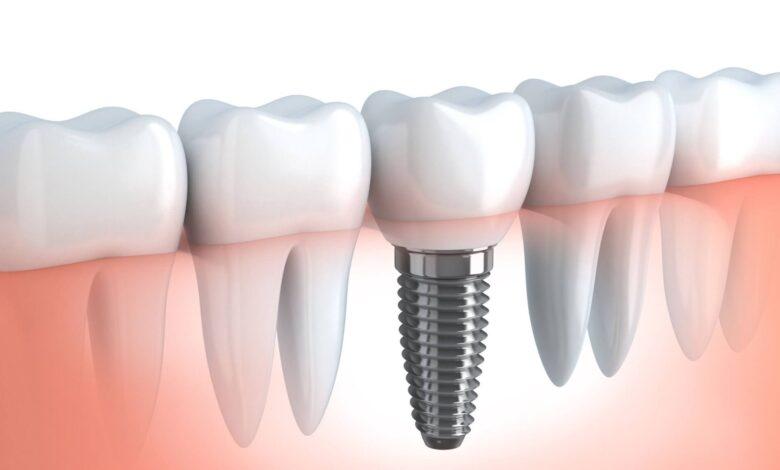Contemplating on Dental Implants