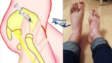Photo of Case: Numbness and tingling sensations in his lower limb (foot drop)